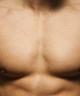 Erkek Göğüs Bölgesi Lazer Epilasyon
